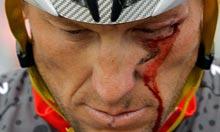 Lance-Armstrong-bleeds-fr-003