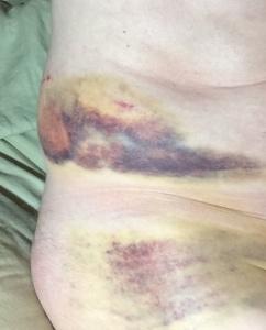 Bruises t00