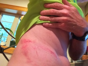 """My lower back too a beating from an 8"""" tree limb. But at least there were no broken bones or ribs."""