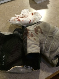Evidence of recent events includes a pair of blood-soaked gloves and tissue.
