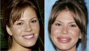 Fighting age through plastic surgery is not always the best strategy.