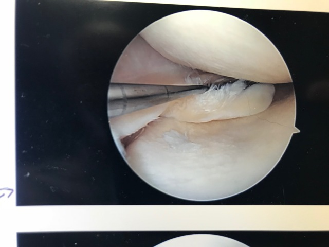 Knee porn excision.jpg