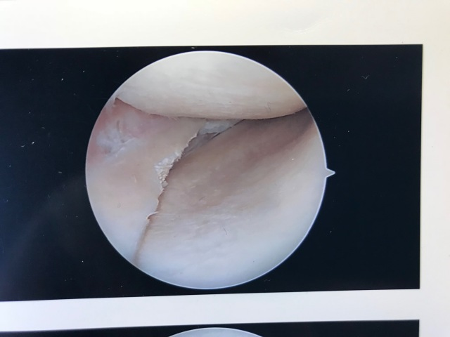 KNee porn repaired.jpg